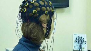استخدام موجات الدماغ الكهربائية لمساعدة مرضى الشلل