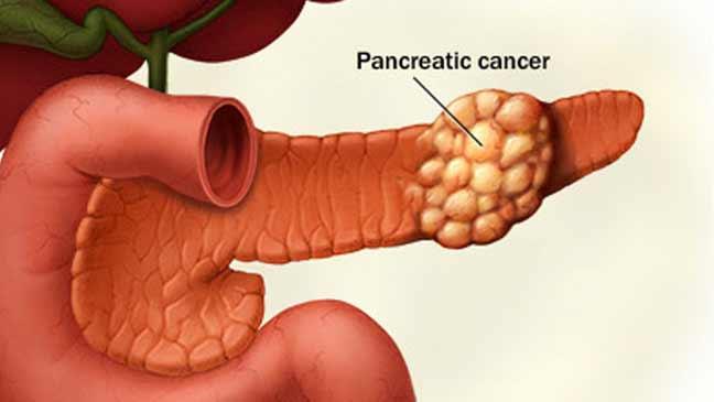 تقسيم سرطان البنكرياس إلى أربعة أنواع