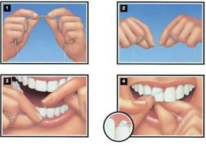 تنظيف ما بين الأسنان