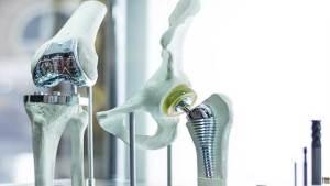 تيتانيوم الذهب قد يكون بديلا أقوى في عمليات زرع العظام