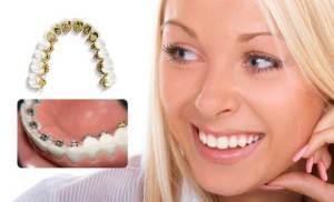 تقويم الأسنان المخفي Lingual Orthodontics