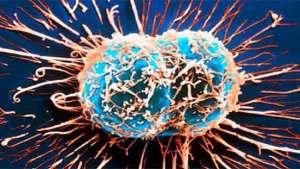 علماء رياضيات يشرحون آلية نمو الأورام السرطانية