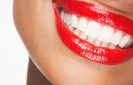سلامة تبييض الأسنان
