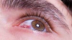 احمرار العين..متى يصبح علامة خطر وكيف يمكن تجنبه؟