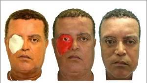أول شخص في العالم يحصل على وجه مطبوع بتقنية ثلاثية الأبعاد