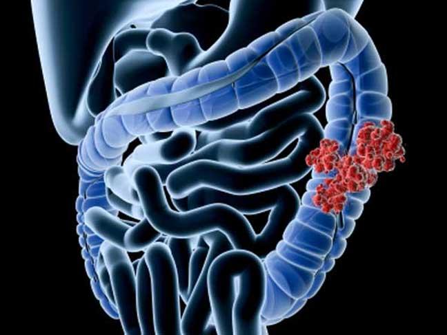 طرق فعالة للكشف المبكر عن سرطان الأمعاء