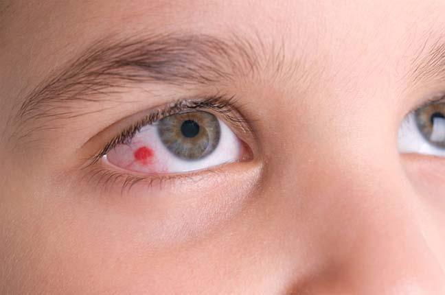 أسباب ظهور نقطة حمراء في بياض العين للطفل