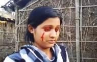 هندية تذرف دما بدلا من الدموع