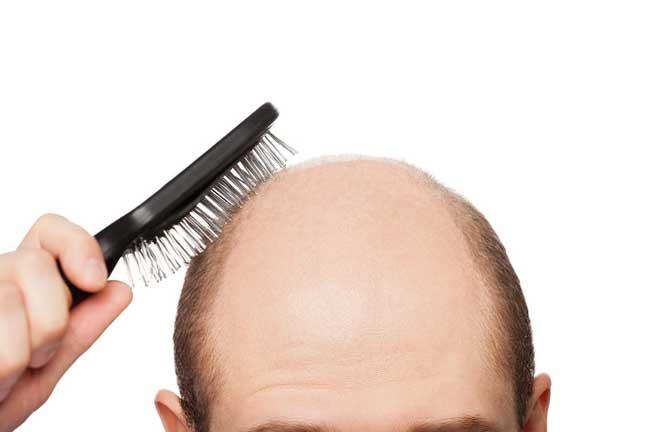 غذاء ثبت أنه يوقف عملية تساقط الشعر