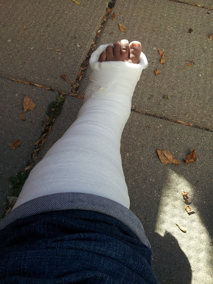 Of casts and crutches