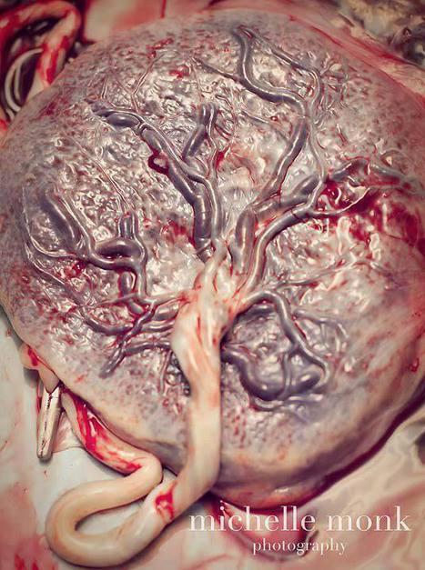 arbol_placenta_michelle_monk