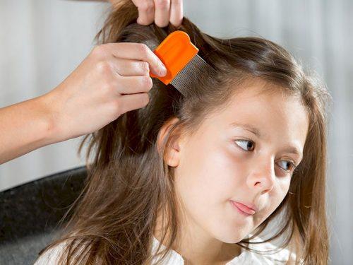 Saç Bitlenmesi, Saç Bitlenmesi (Pedikülozis), Tatlı Bir Telaş, Tatlı Bir Telaş