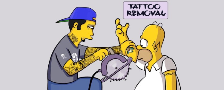 Simpson's tattoo removal