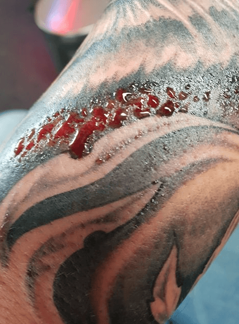 Bloed uit nieuwe tattoo