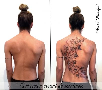 corrección visual escoliosis tattoo palencia