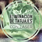 eliminación de tatuajes laser palencia