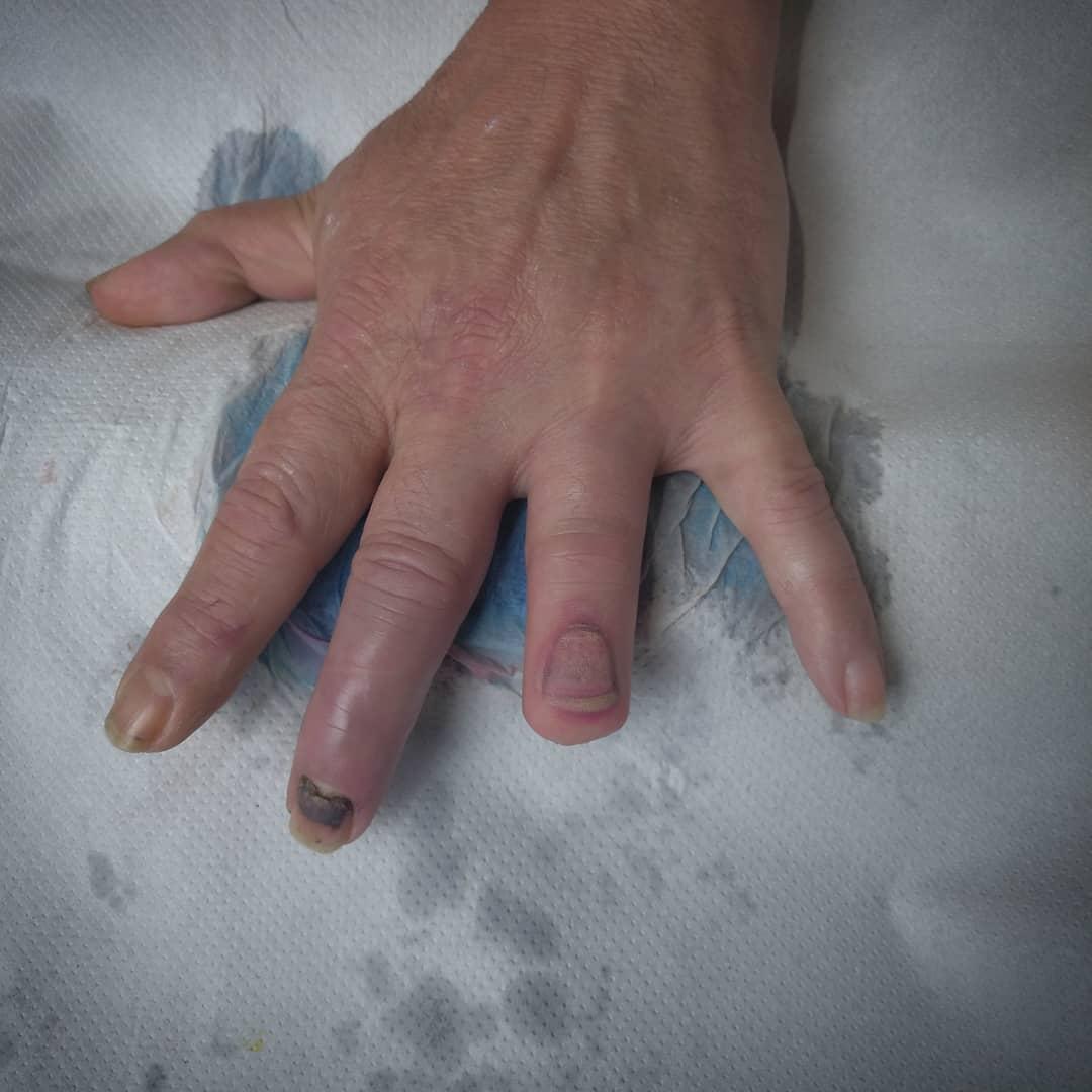 tatuaje reconstructivo uña cicatriz PALENCIA