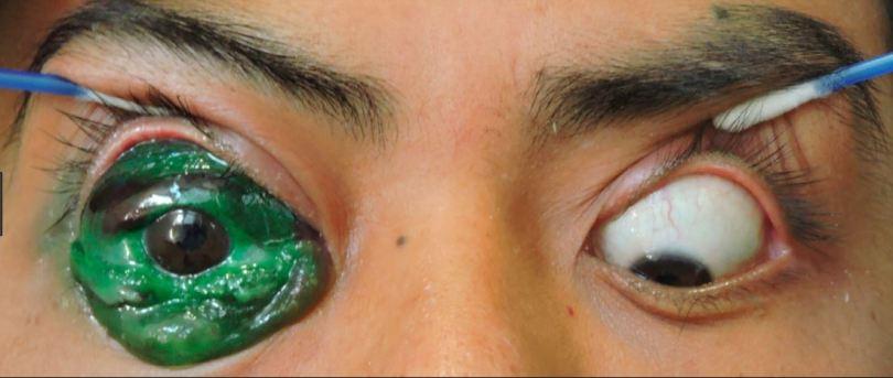 eyeball tattoo 3