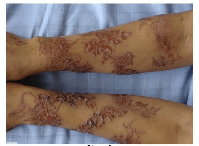 Tatouage infecté