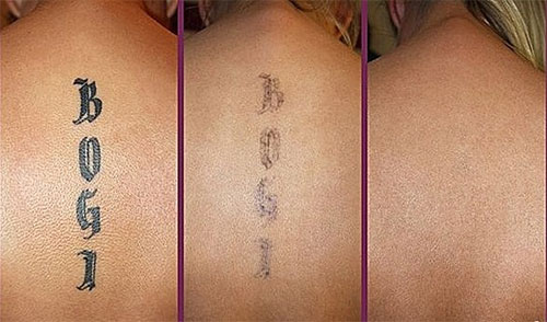 Laser Tattoo Removal For Garland Residents | Tattoo ...