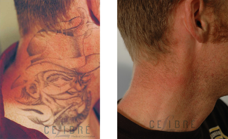 Is Laser Tattoo Removal Really Safe The Skiny Ideas And Designs