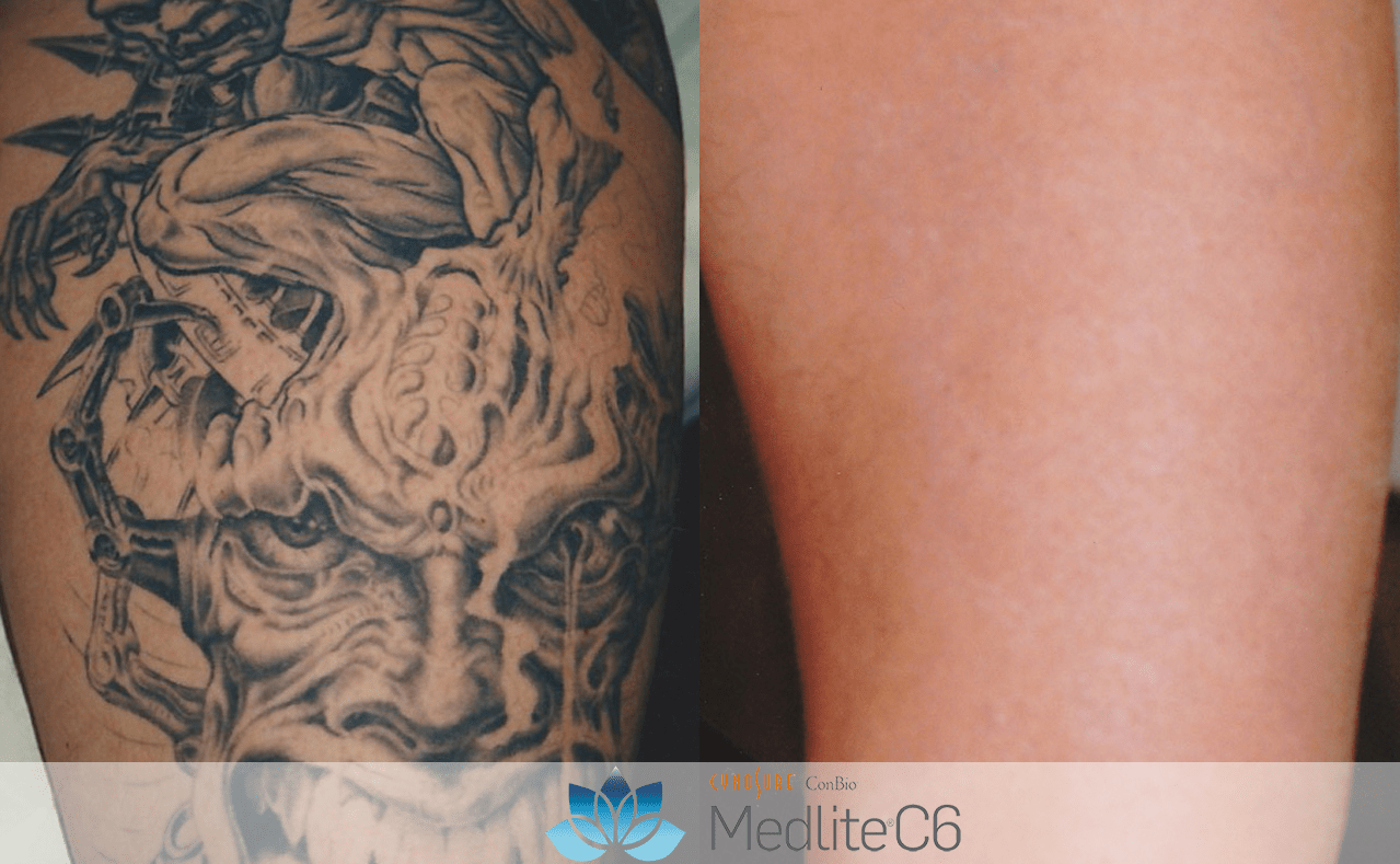 Tattoo Removal – Revitalase Ideas And Designs