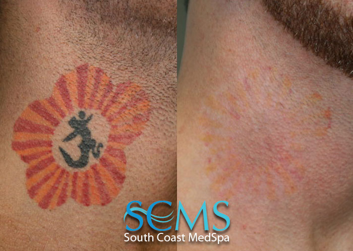 Laser Tattoo Removal How To Get Rid Of Big Pimples On Ideas And Designs