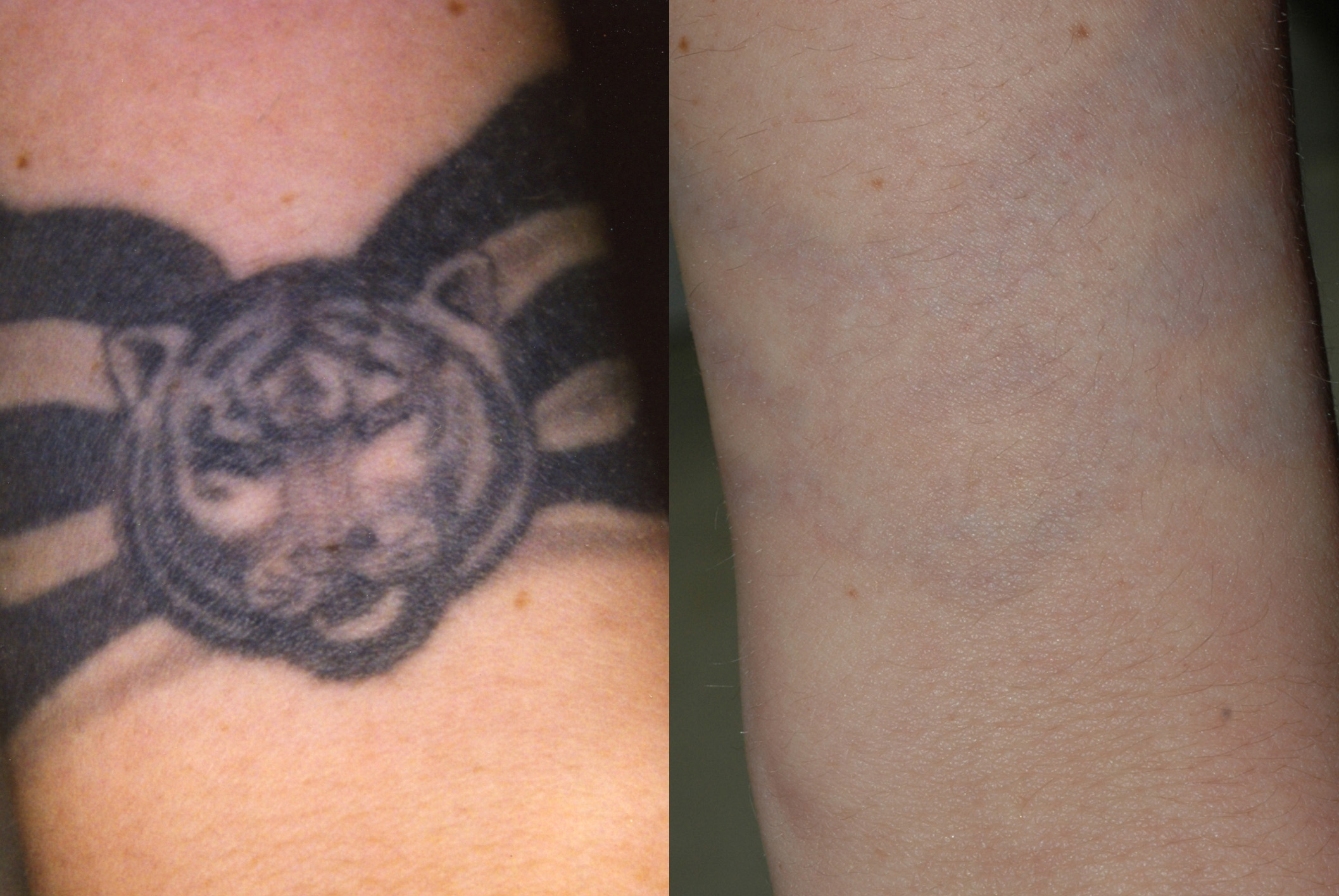 Laser Tattoo Removal Virginia Beach David H Mcdaniel Ideas And Designs
