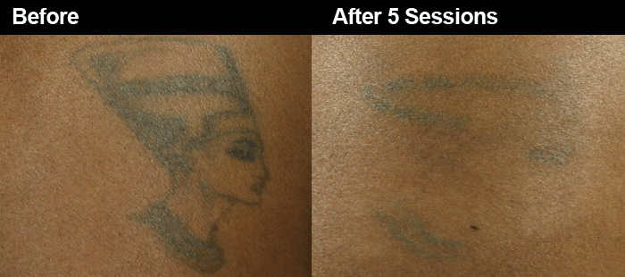 Laser Tattoo Removal Safe For Dark Skin Wifh Ideas And Designs