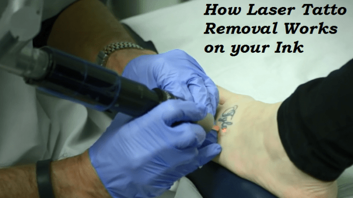 Can You Remove Tattoos Naturally At Home By Yourself Ideas And Designs