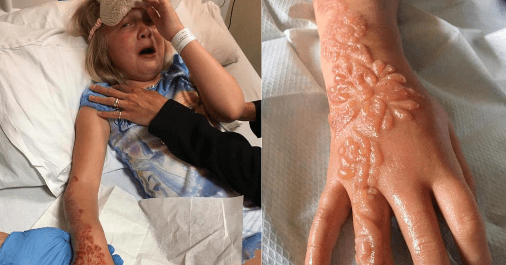 7 Year Old Girl Suffered Horrifying Scars On Her Arm After Ideas And Designs