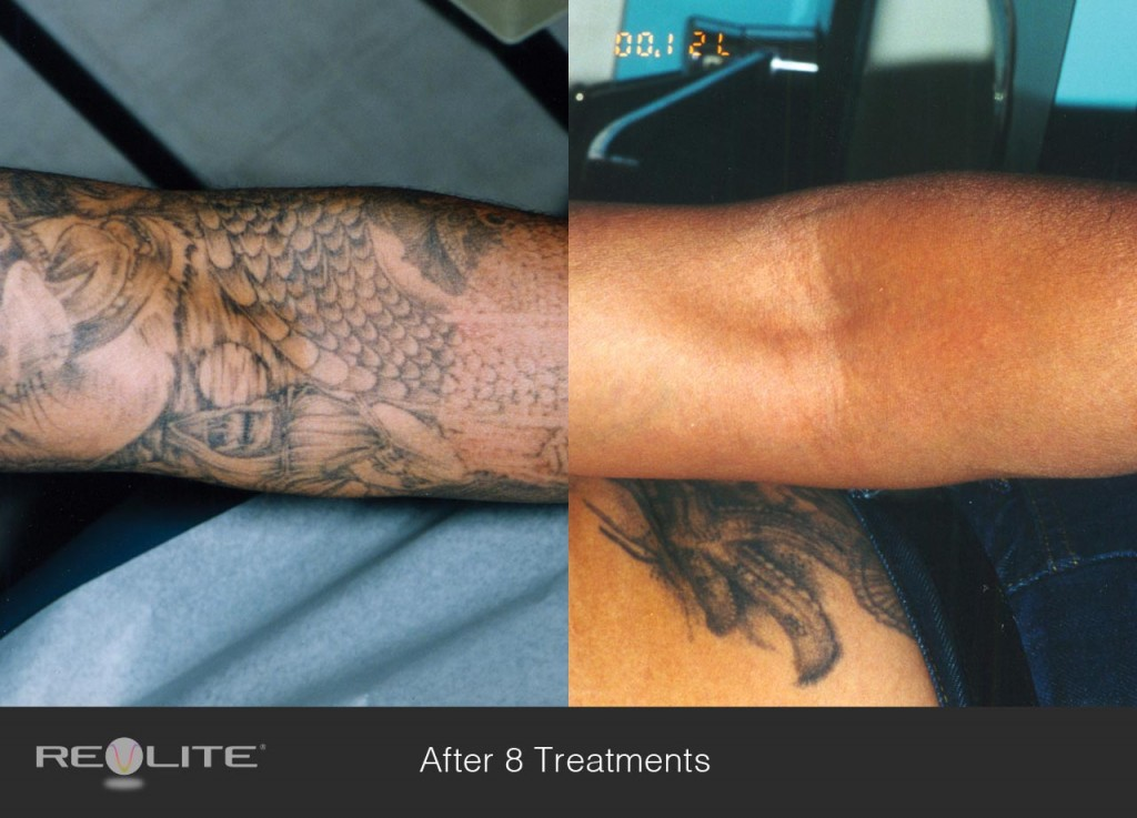 Laser Tattoo Removal Risks Side Effects And Costs Ideas And Designs