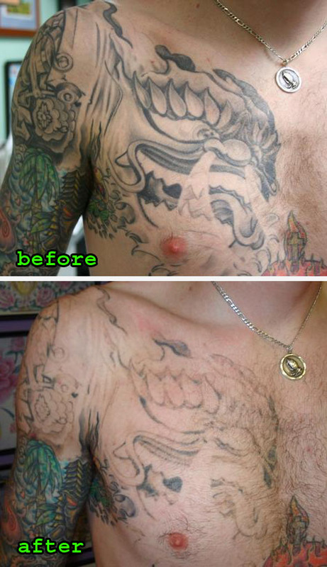 Tattoo Removal Before And After Ideas And Designs