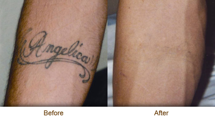Natural Tattoo Removal March 2013 Ideas And Designs
