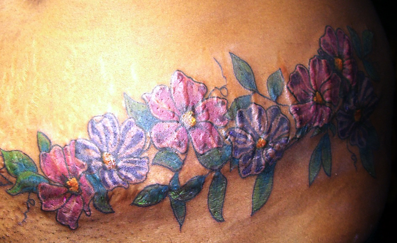 Tattooing Over Scar Tissue Stretch Marks Yahoo Answers Ideas And Designs