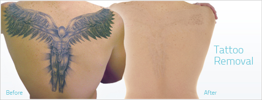 Tattoo Removal Methods The Ones That Work And The Ones Ideas And Designs
