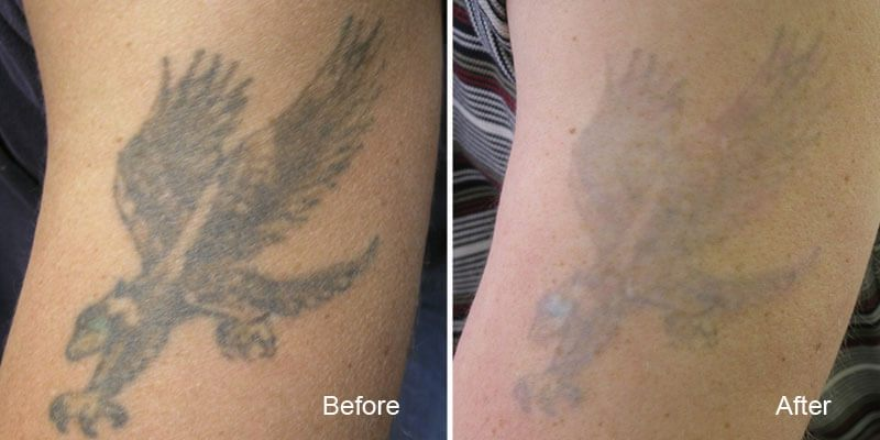 Tattoo Removal Vancouver Remove Tattoos Safely And Fast Ideas And Designs