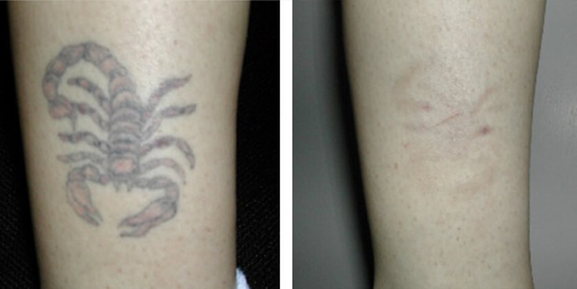 Tattoo Removal Before After Photos Nyc Ideas And Designs