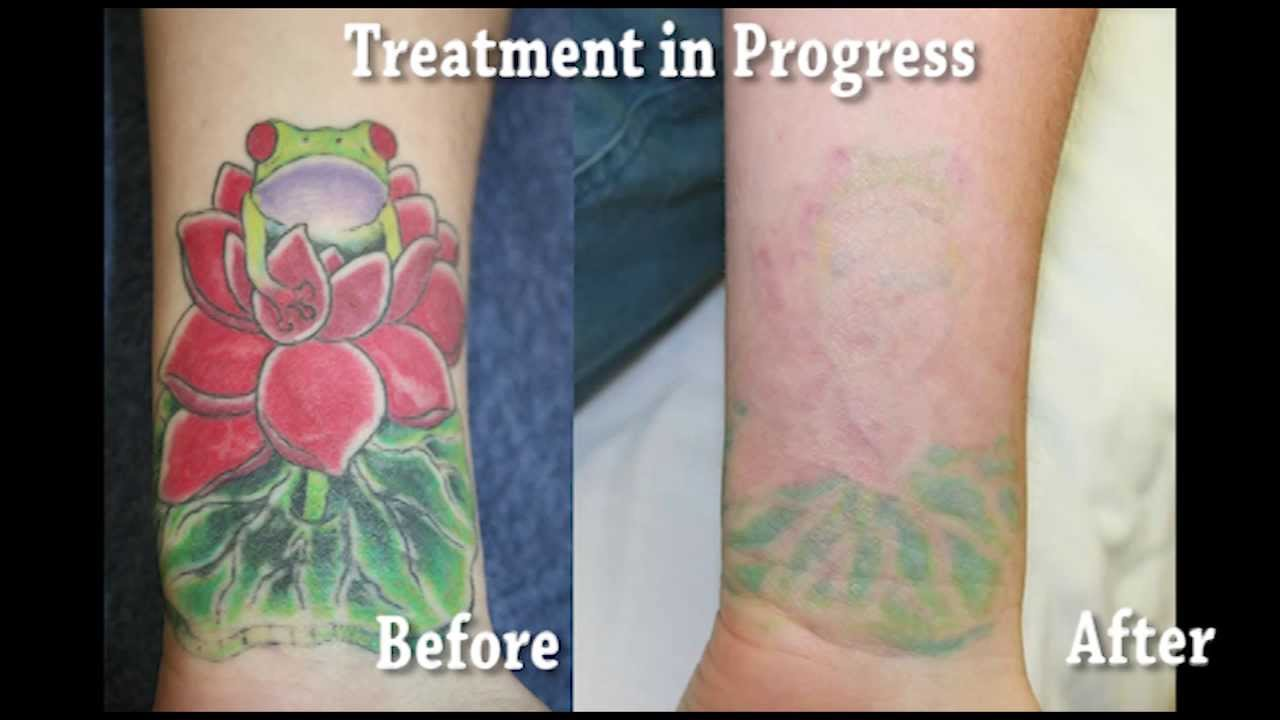Bright Color Tattoo Removal Youtube Ideas And Designs