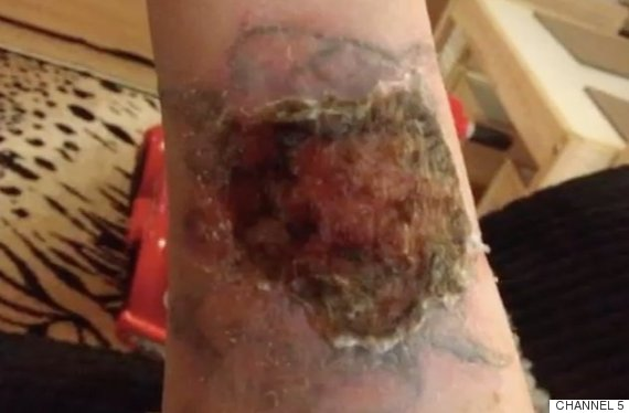 Tattoo Removal Woman Pours Pure Acid On Arm In Attempt To Ideas And Designs