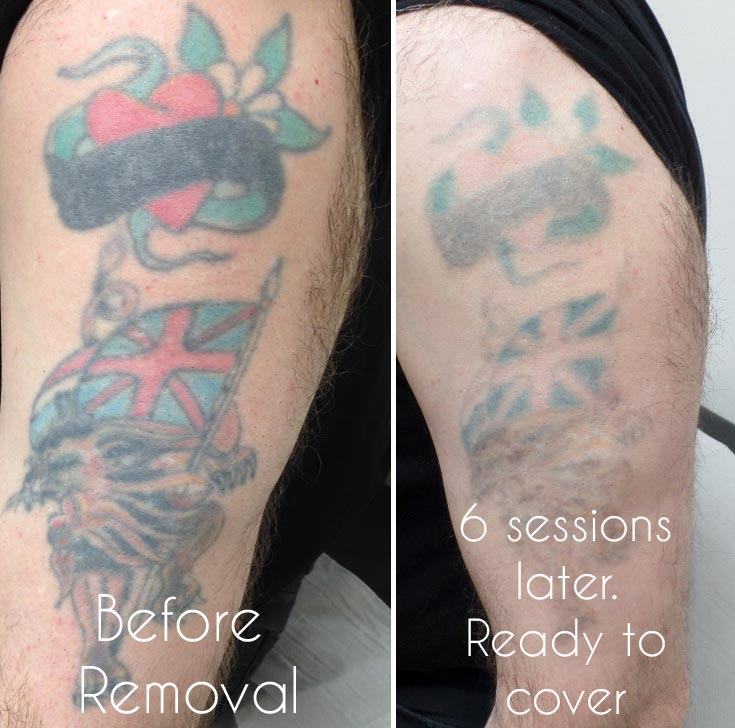 Laser Tattoo Removal Birmingham Uk Ideas And Designs