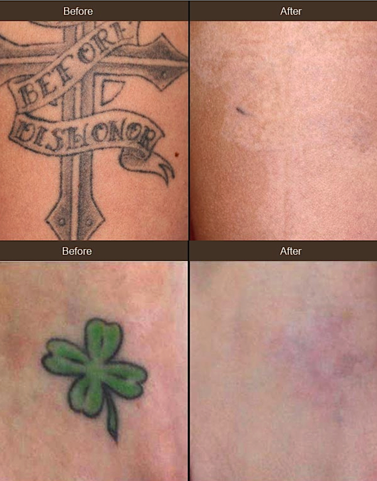 Tattoo Removal With New Laser Upgrade Comes To Beverly Ideas And Designs