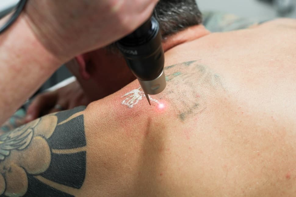 Faq Does Laser Tattoo Removal Hurt Andrea Catton Laser Ideas And Designs