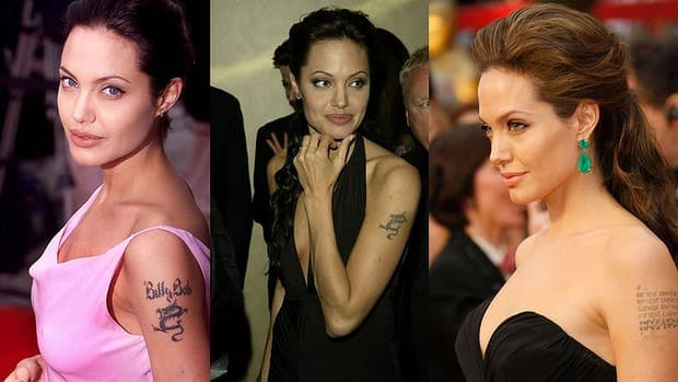 Can You Get A Tattoo After Laser Tattoo Removal Andrea Ideas And Designs