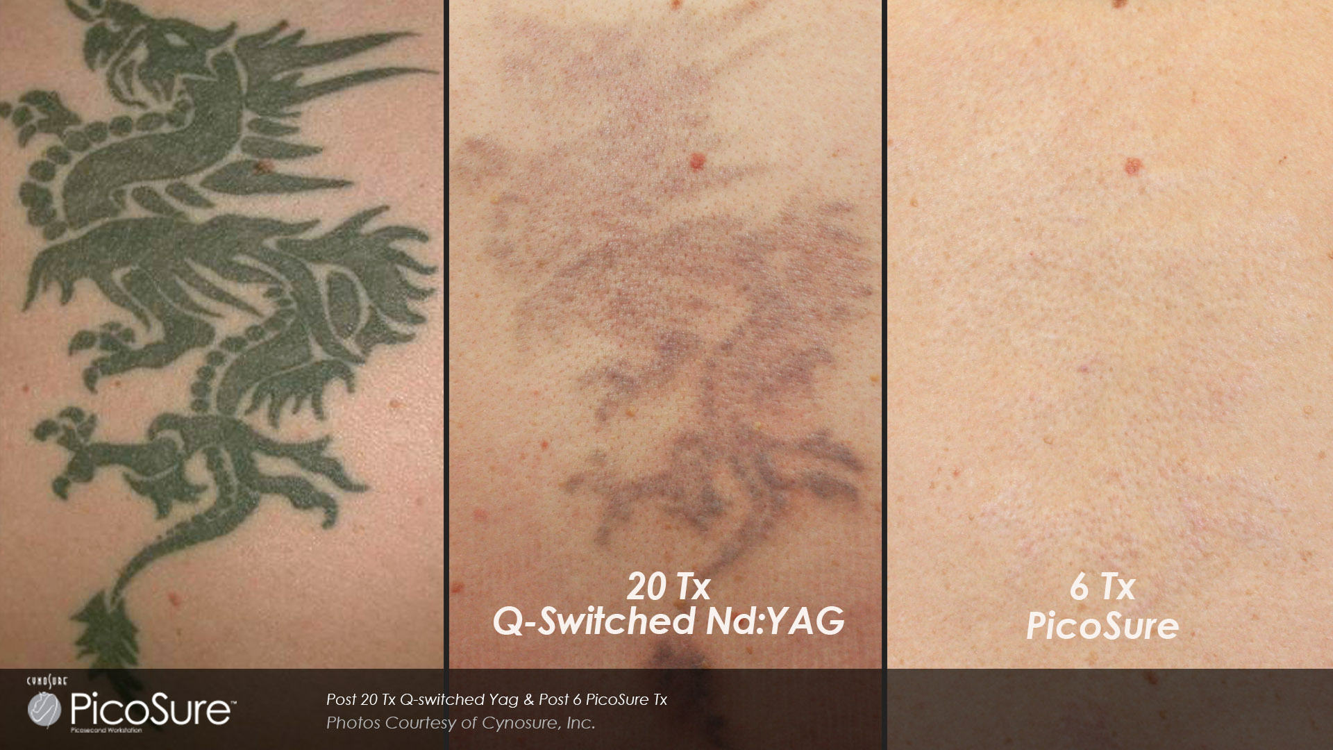 Q Switch Versus Picosure For Tattoo Removal Toronto Ontario Ideas And Designs