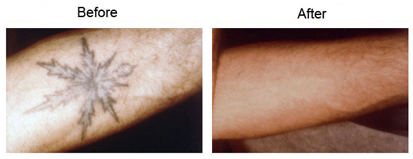 Laser Tattoo Removal La Fast Effective Treatment Los Ideas And Designs