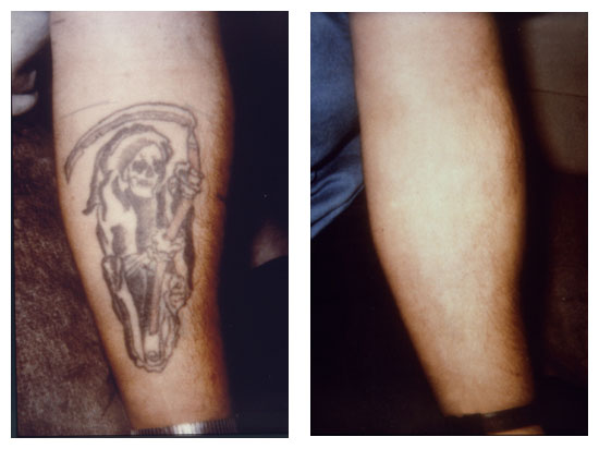 Laser Tattoo Removal New Look Skin Center Ideas And Designs
