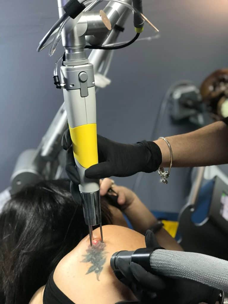 Best Tattoo Removal In Fort Lauderdale Bad Habits Tattoos Ideas And Designs