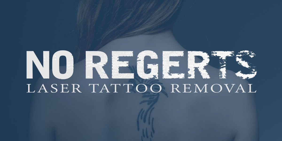 No Regerts Laser Tattoo Removal Ideas And Designs
