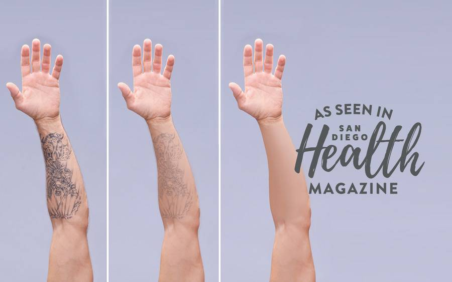 How Tattoo Removal Works Scripps Health Ideas And Designs